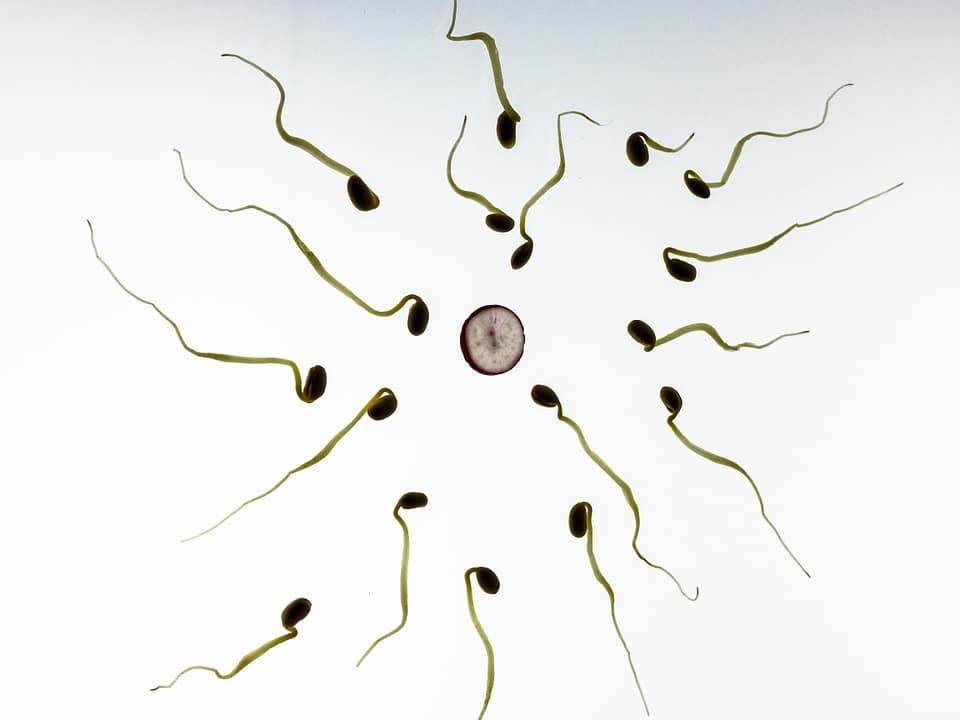 Sperme jaune